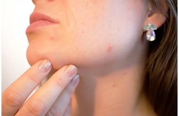 Proti akné a pro ošetření pleti
